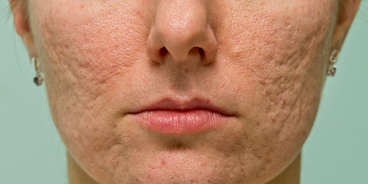 8 Amazing Tips to Get Rid of Acne Scars and Spots
