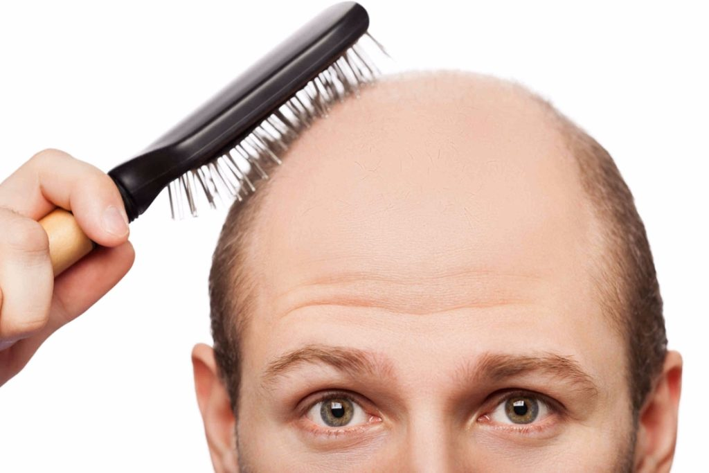 Is it possible to regrow lost hair